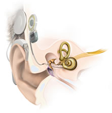 Anatomy Cochlear Implant