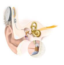 Anatomie VIBRANT SOUNDBRIDGE