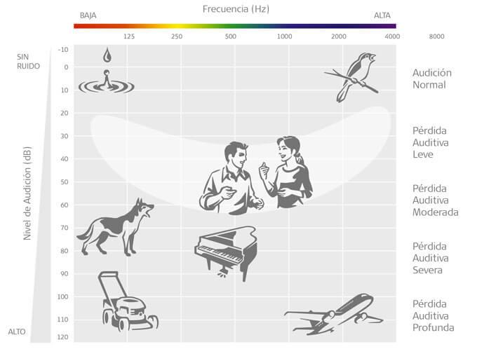 Audiograma con audición normal