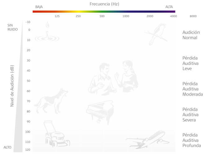 Audiograma con hipoacusia profunda