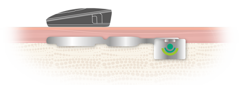 BONEBRIDGE Bone Conduction Implant